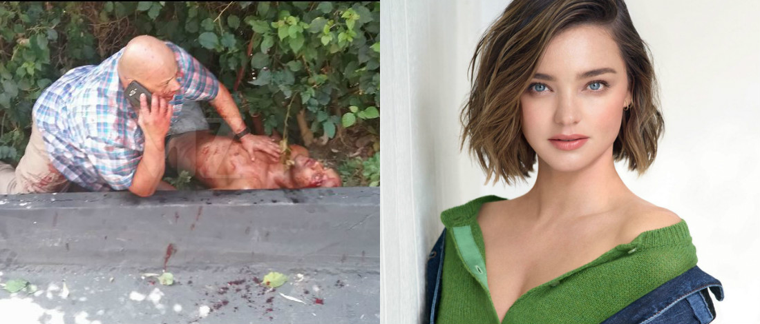 Pengawal Peribadi Miranda Kerr Cedera Parah Ditikam Penceroboh