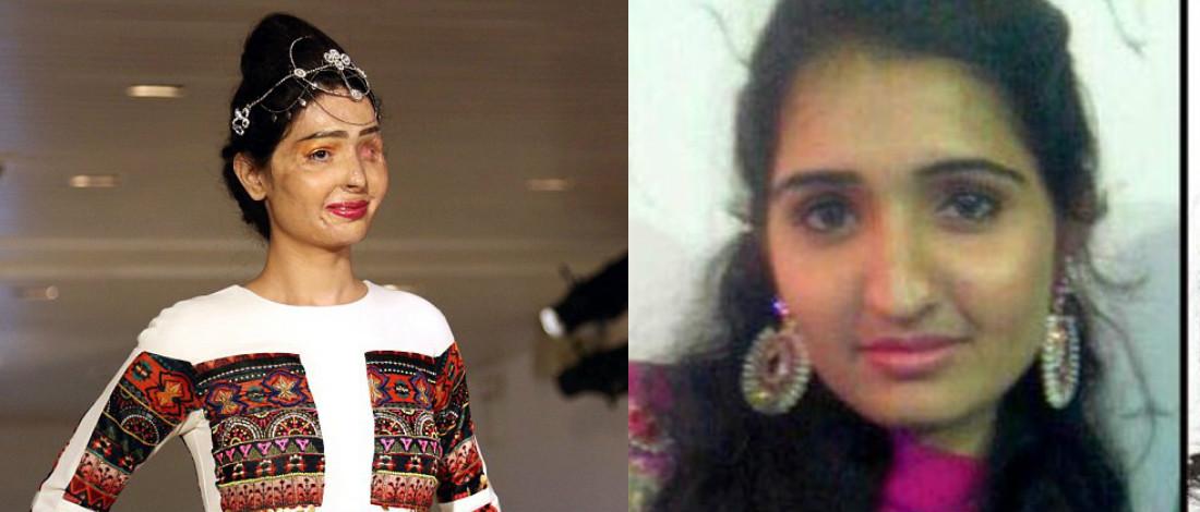 Mangsa Simbah Asid Tarik Perhatian, Jadi Model Di Minggu Fesyen New York