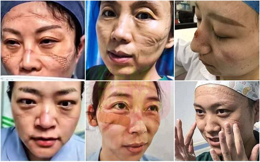 Image result for doktor wuhan luka sebab topwng