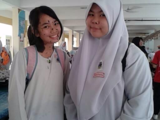Bersama teman sekolahnya.