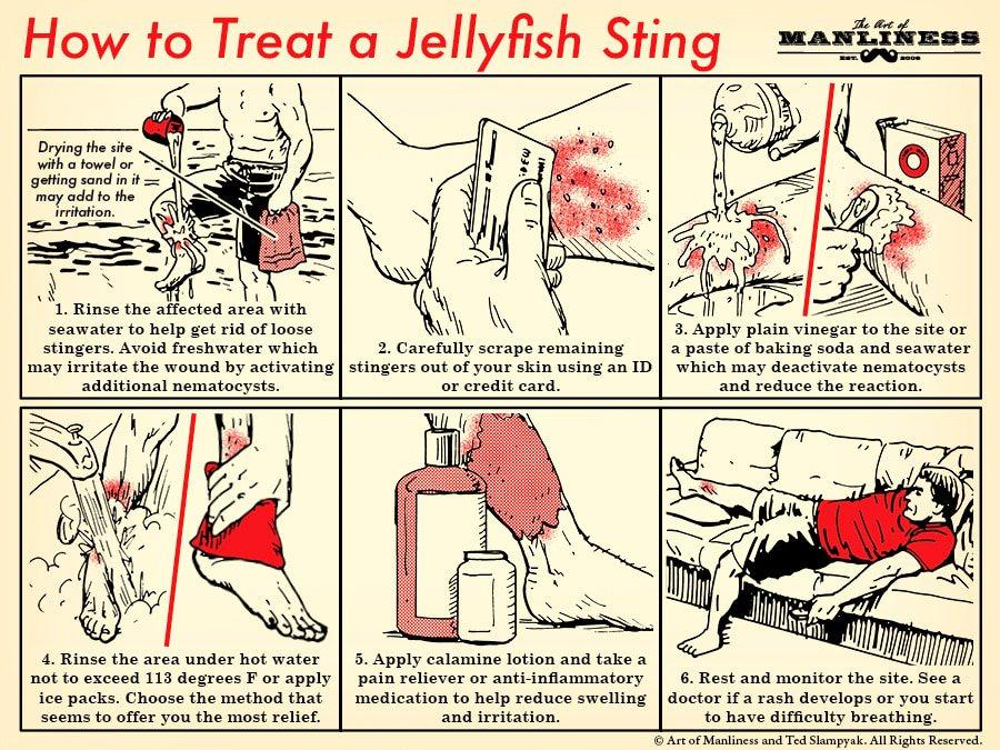 Treating jellyfish sting 101