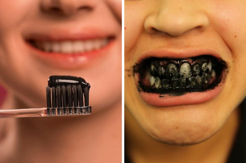 Benarkah Produk Arang Mampu Putihkan Gigi Ini Penjelasan Doktor