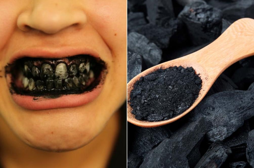 Arang Tidak Akan Memutihkan Gigi Anda? Dengar Penjelasan Tiga Pakar Ini