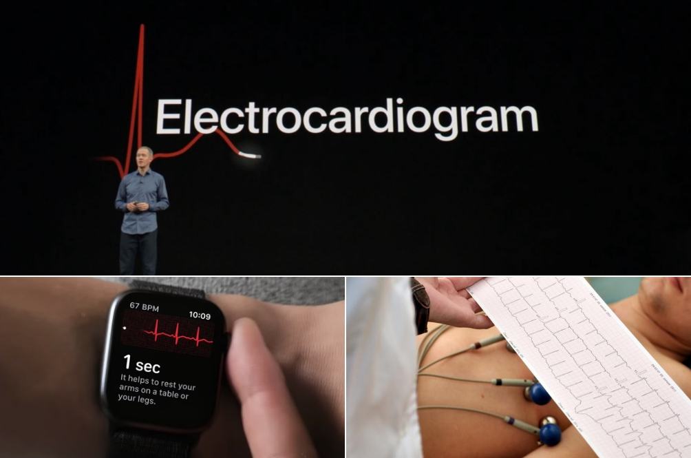 Plug-in: Apple Watch Kini Mampu Melakukan ECG, Kesan Sekiranya Ada Komplikasi Jantung!