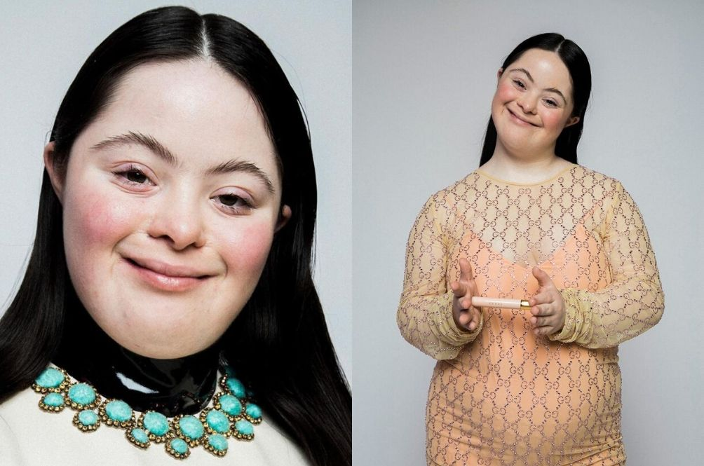 Gucci's New Beauty Campaign Features A Model With Down Syndrome And She Is Stunning!