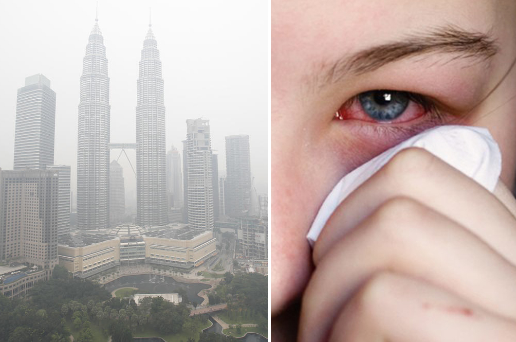 A Lot Of Malaysians Are Getting Eye Infection Because Of The Haze