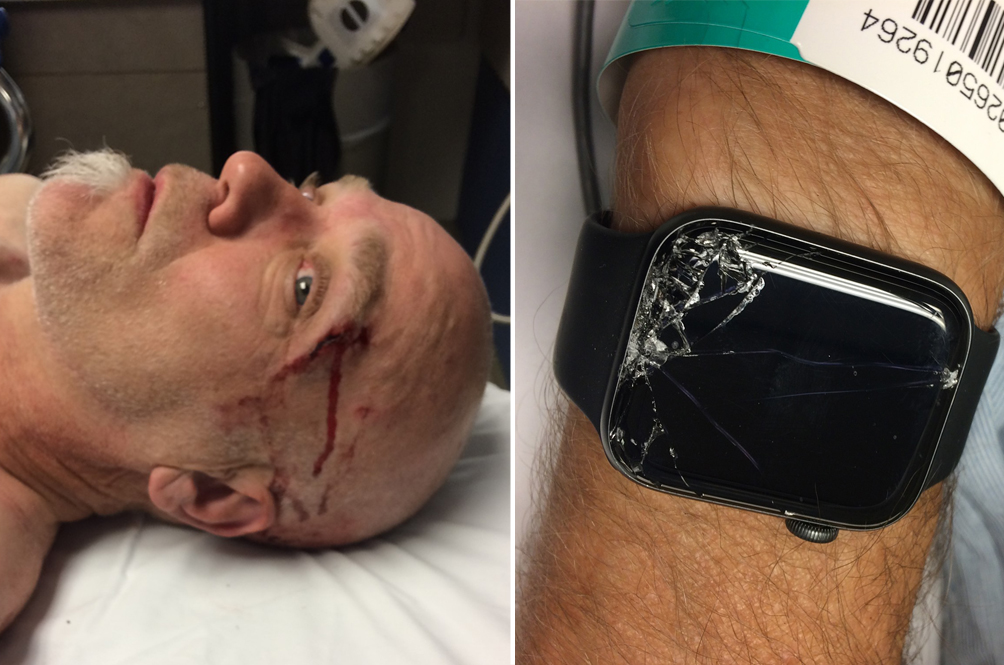 Saved By The Tech: How An Apple Watch Saved The Life Of One Man