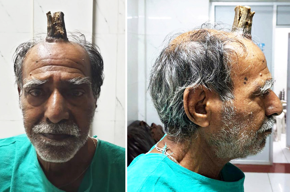 The Mysterious Case Of An Indian Man And His 'Devil Horn'