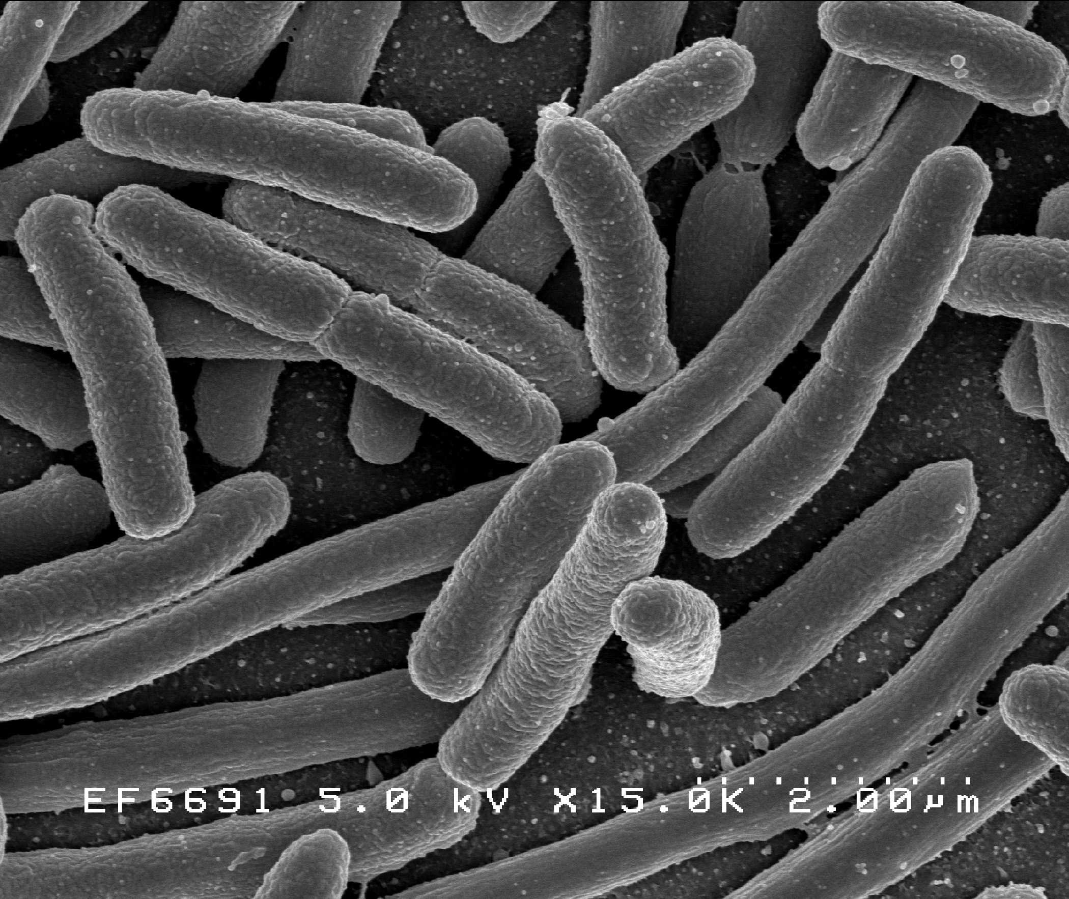 E. coli O157 can cause many types of illnesses.