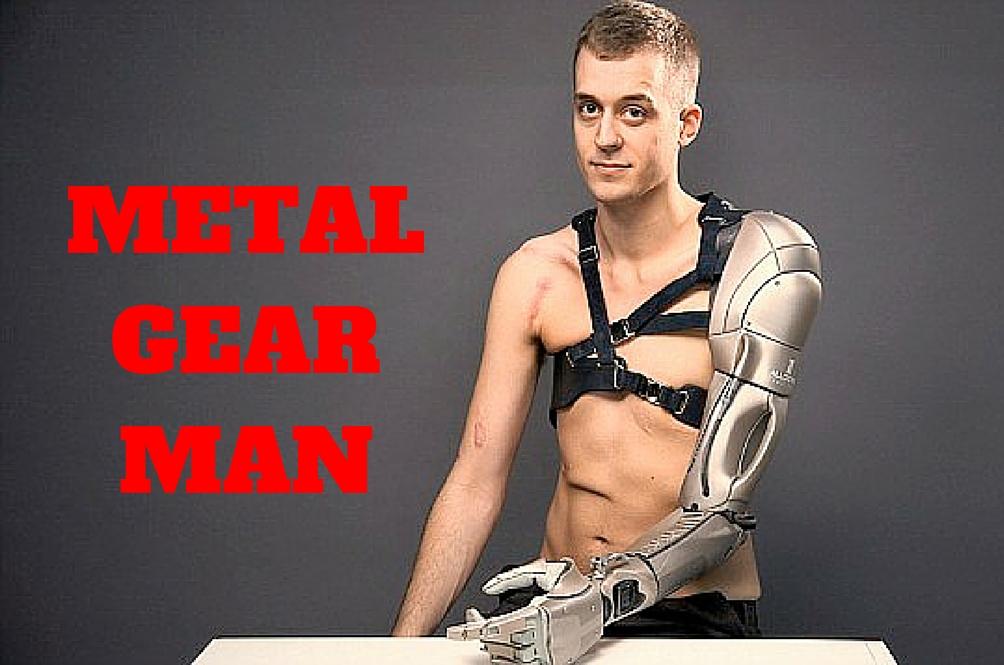 Meet James, The Man With a Metal Gear Arm