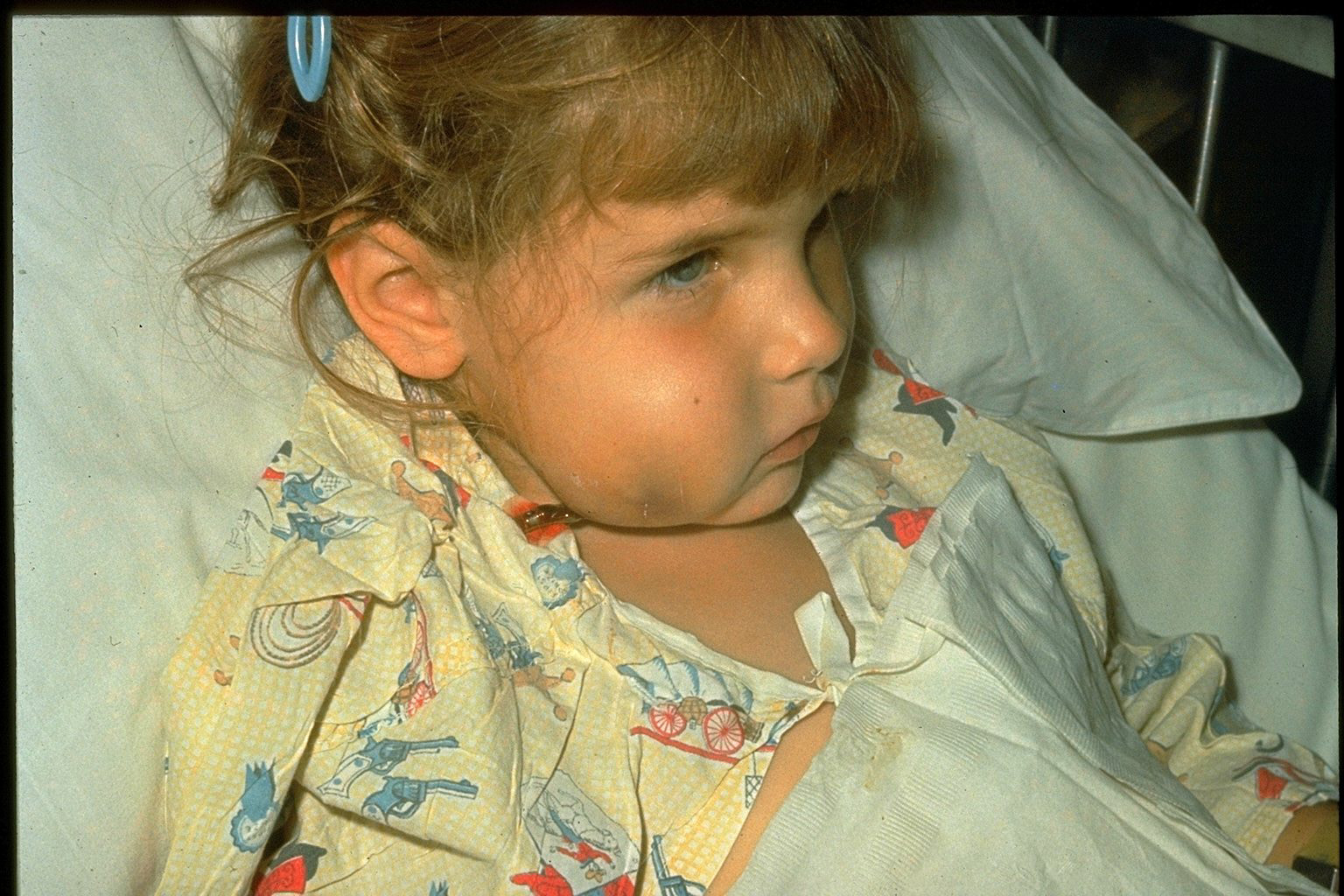 A child who's been infected with Hib
